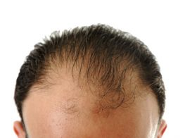 Medical Aesthetic Clinic, Dr Faddoul,hair transplant in Lebanon, hair growth Lebanon, hair implant Lebanon, hair loss clinic Lebanon, hair loss cure in Lebanon, regrowth of hair in Lebanon, FUE in Lebanon, Lebanon hair clinic, Lebanon hair transplant, Lebanon hair growth clinic, Lebanon hair growth cure, Lebanon hair implant procedure, Lebanon hair implant clinic, Lebanon hair loss doctors, Lebanon hair loss cure, Lebanon hair regrowth procedure, Lebanon FUE procedure, , lebanon beauty clinics, beauty clinics in lebanon,lebanon beauty centers,beauty centers in Lebanon, beauty in Lebanon, Beauty clinics in lebanon, plastic surgery in lebanon, beauty surgery in lebanon, Lebanon beauty clinics, lebanese beauty doctors, beauty surgery lebanon, breats surgery lebanon,  breast enlargement lebanon, tummy tuck lebanon, anti aging in Lebanon, facials in Lebanon, facial treatment in Lebanon, laser hair removal, ipl hair removal in lebanon, face rejuvination in lebanon, botox in lebanon, lebanon botox doctors, lebanon anti aging doctors, lebanon anti aging clinics